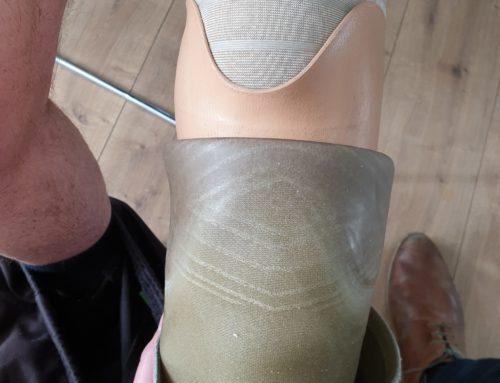 Digitaal scannen onderbeenprothese, een case van Heckert en Van Lierop